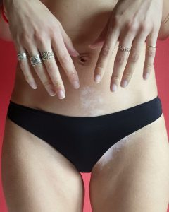 all-women-x-one-nine-eight-five-arthrits-vitiligo
